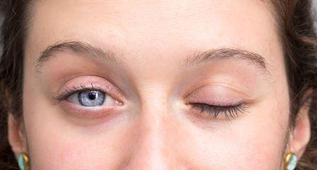 顏面神經麻痺-女性患者臉癱