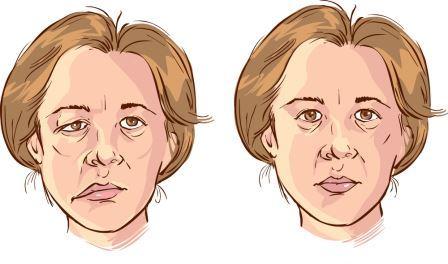 顏面神經麻痺模擬圖-女性患者臉癱
