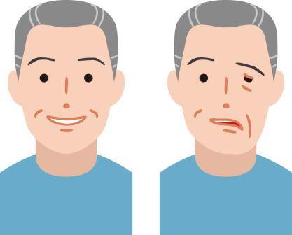 男性顏面神經麻痺圖片